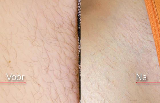 laserbehandeling bikinilijn
